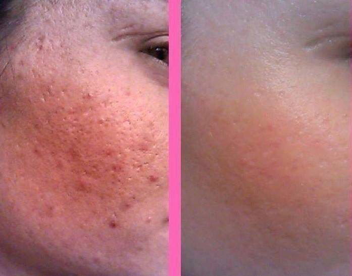 Amazing results with acne wash treatment
