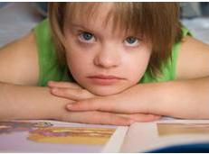 Down Syndrome Characteristics, Effects and Treatment