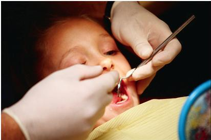 child with symptoms of oral defensiveness and dysfunction getting teeth cleaned while at the dentist